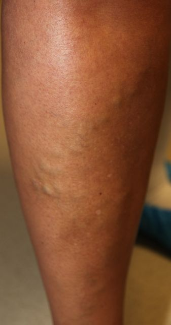 inwendige spataderen in benen
